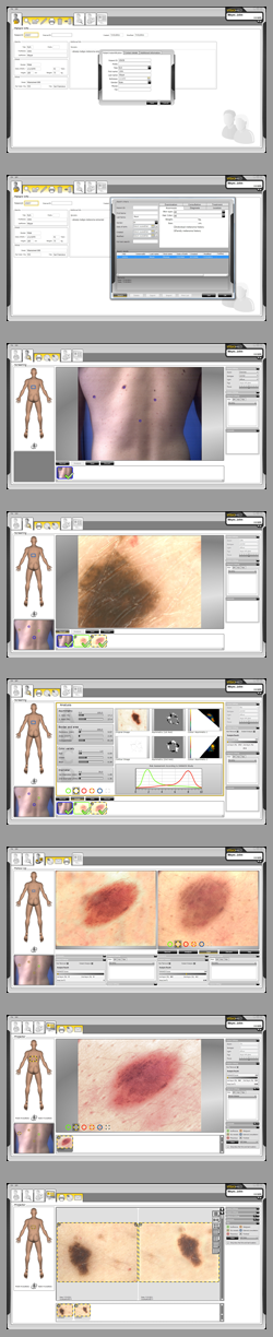 microDERM_screenshots_vertical_s